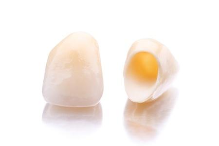 all-ceramic dental crowns